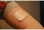 Медицина будущего: пластырь из кожи вместо шприца