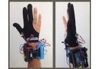 Роботизированная цифровая перчатка доктора