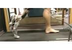 Новый протез обеспечит естественную походку